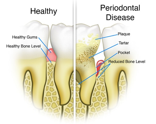 Gum Disease Therapy | Havelock | Dr. Vipin Grover