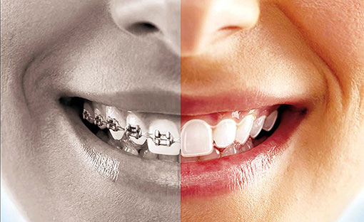 Invisalign | Havelock | Dr. Vipin Grover