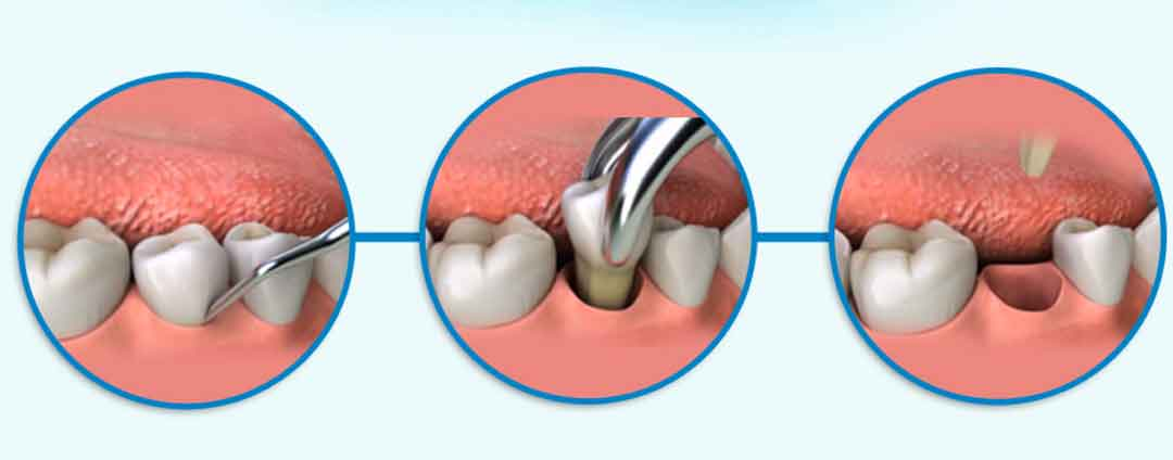 Tooth Extractions | Havelock | Dr. Vipin Grover