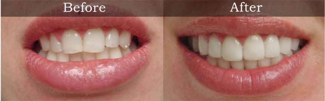 Cosmetic Dentistry | Havelock | Dr. Vipin Grover