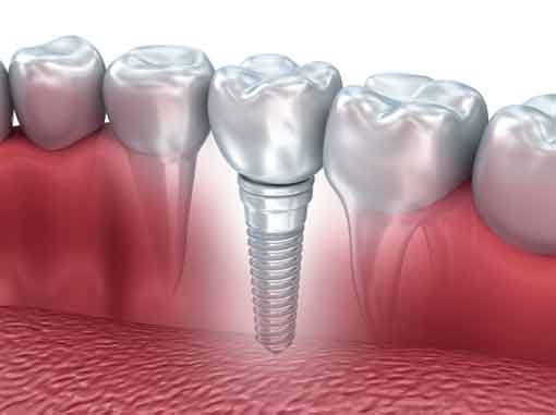 Dental Implants | Havelock | Dr. Vipin Grover